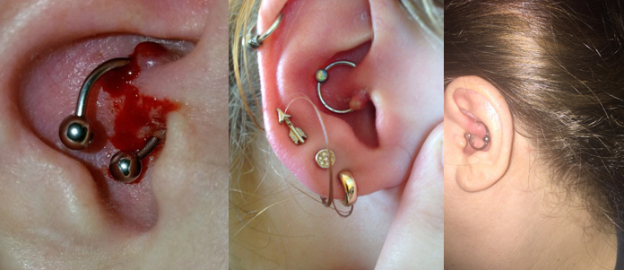 Daith piercing infection